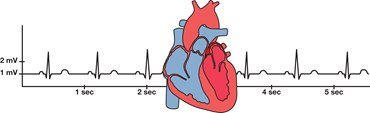 Studying Heart Function Using Electrocardiograms Anatomy and Physiology Kit