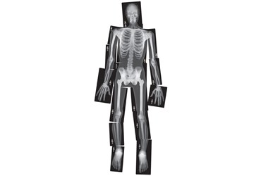 Human X-Ray Set for Anatomy Studies