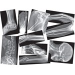 Broken Bone X-Ray Set for Anatomy Studies