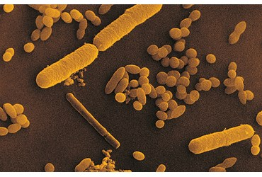 Escherichia coli Bacterial Culture for Microbiology Laboratory Studies