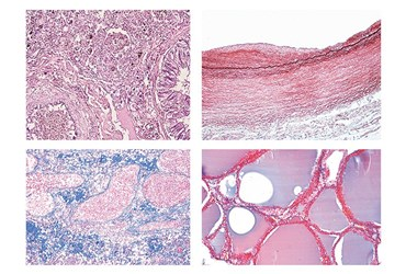 Human Pathology Slide Sets